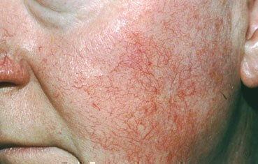 rosacea-symptoms_ETR.jpg